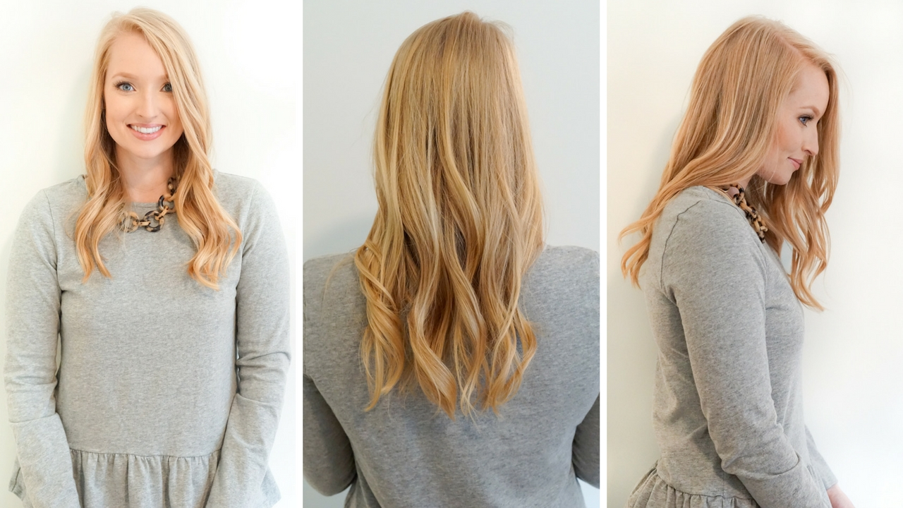 before-and-after-hidden-crown-extensions