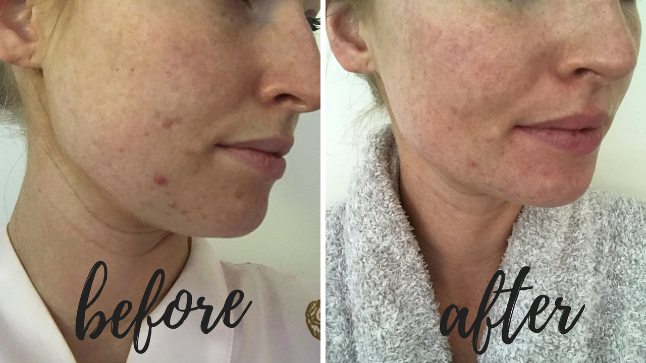 before-after-clarisonic